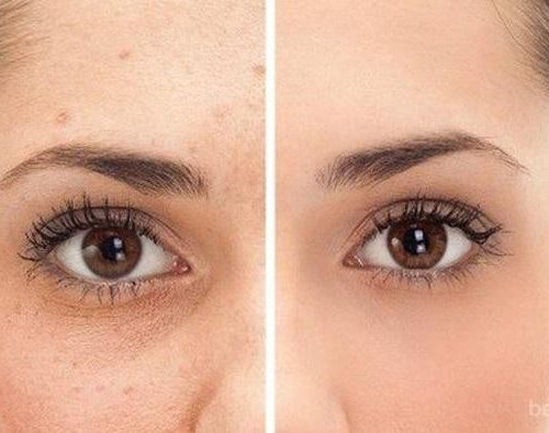 Cara Alami Menghilangkan Flek Hitam di Wajah Secara Cepat